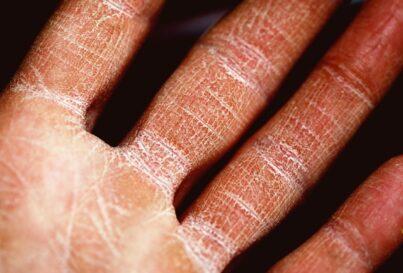 Dermatitis ocupacional: Aspectos a tener en cuenta